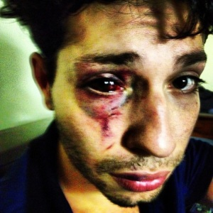Violência doméstica contra homens Imagem: https://barbeirodapatracola.wordpress.com/2014/02/23/violencia-domestica-em-alpiarca/